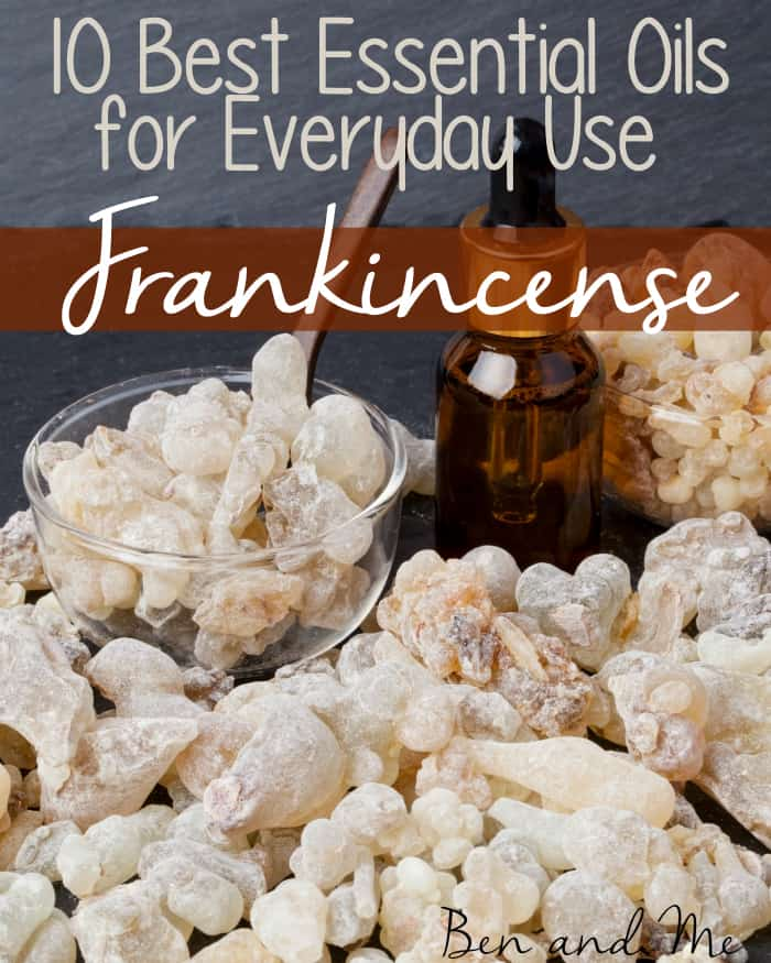 Frankincense essential oil has many benefits and uses. It is a great essential oil for promoting healthy skin care, supporting the immune system, and relieving pain.
